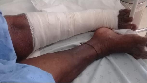 Family Demand Answers After Live Maggots Crawl Out Of Mom's Leg-SurgeZirc SA