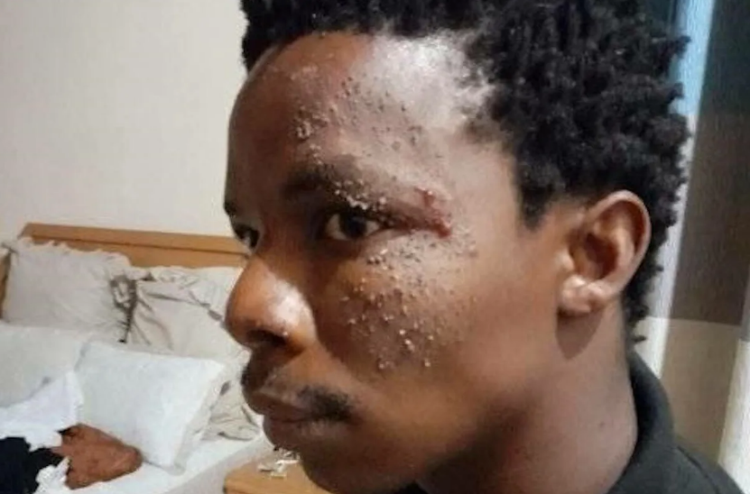 Nelson Mandela's Great-grandson Brutally Assaulted By SAPS Officers-SurgeZirc SA